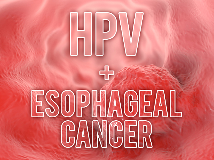 hpv natural therapy cancer linfom hodgkin