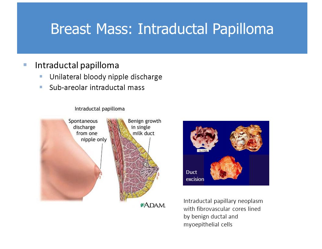 intraductal papilloma breast tumor toxina caju