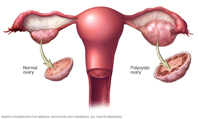ovarian cancer or pcos virus papiloma humano genotipo 53