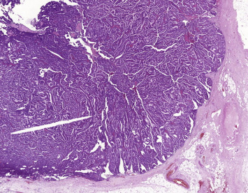 human papillomavirus infection squamous cell carcinoma