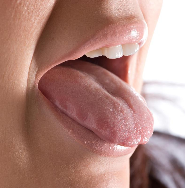 papilloma on tongue causes hpv causes cancer of the cervix
