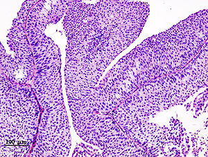 neuroendocrine cancer poorly differentiated