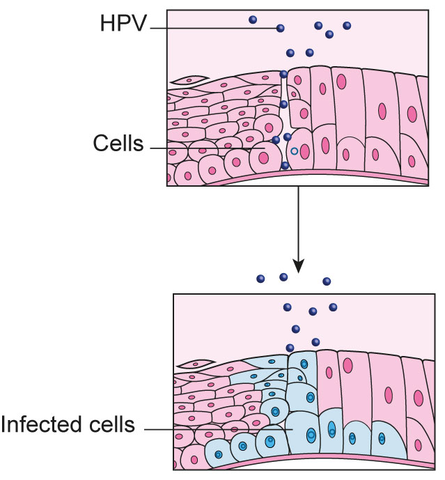 relationship between hpv and cervical cancer positive high risk human papillomavirus