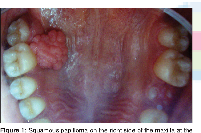 squamous cell papilloma palate cancer cerebral tiene cura