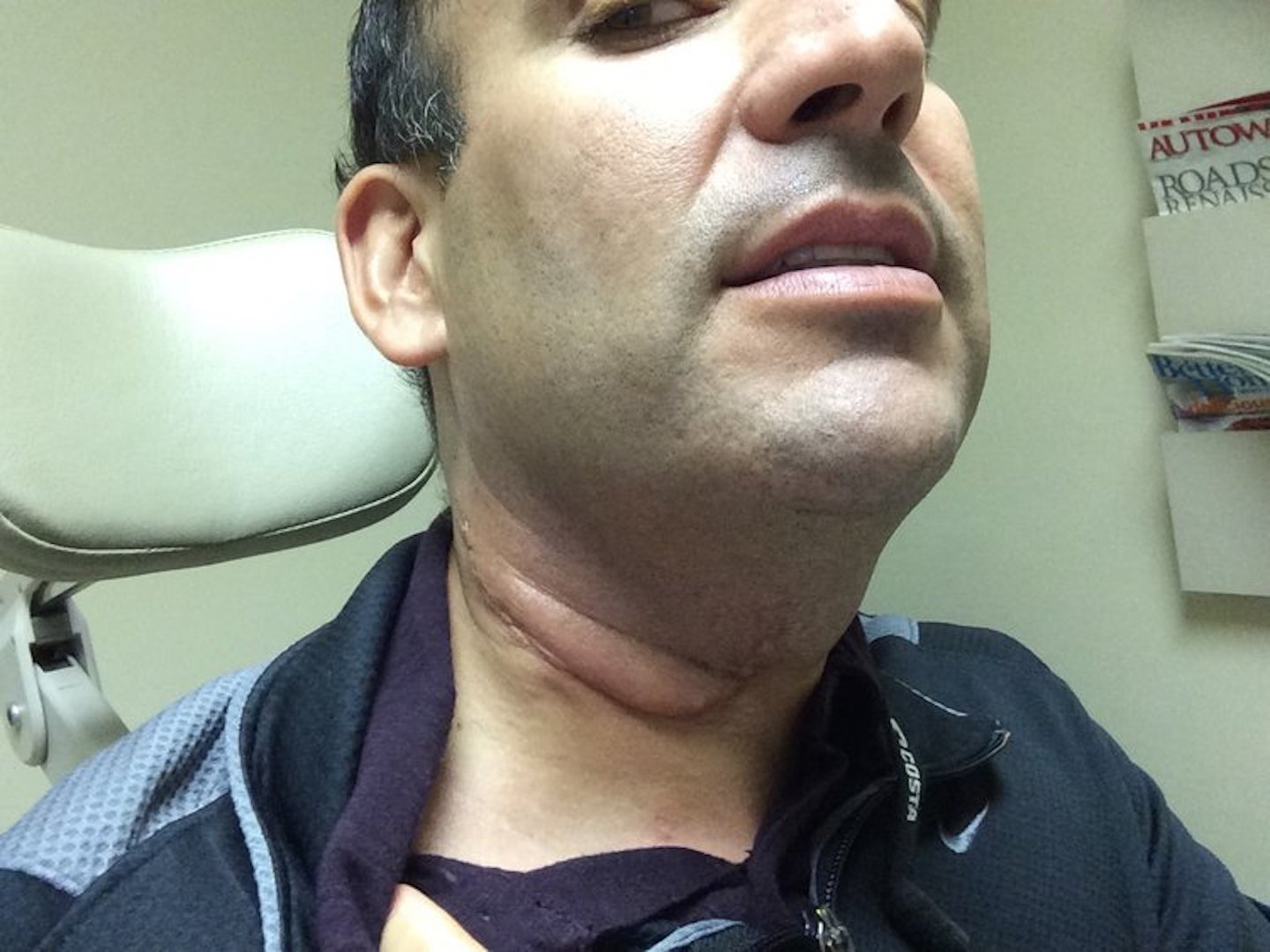 stages of hpv throat cancer hpv genital siil