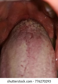 wart tongue white virus de papiloma en perros