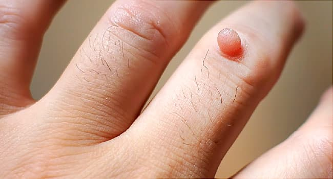 warts on dark skin