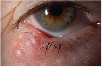 what causes papilloma on eyelid