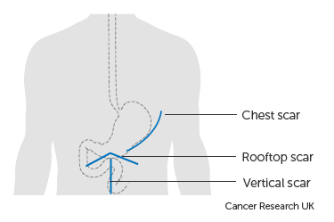 gastric cancer operation