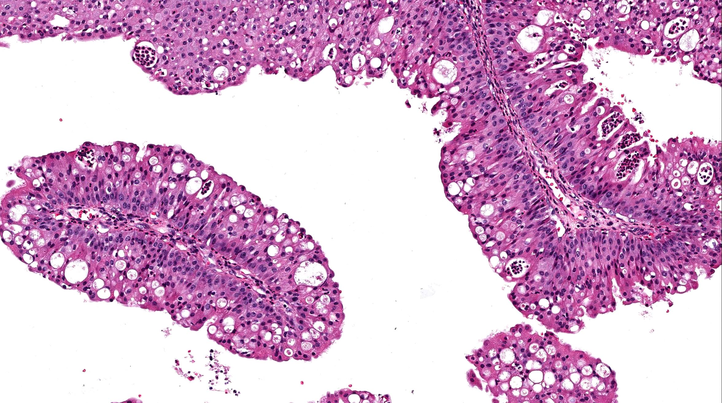papilloma cell definition