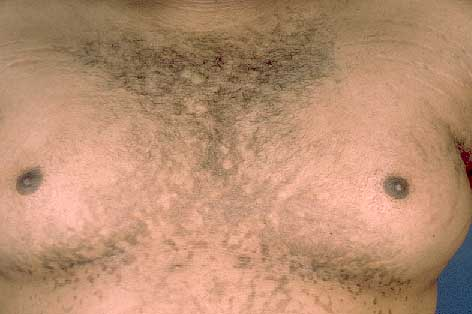 is confluent and reticulated papillomatosis contagious