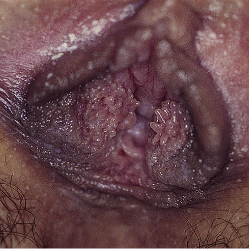 can hpv cause cancer anthelmintic meaning in medical