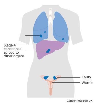 cancer ovarian stage 4
