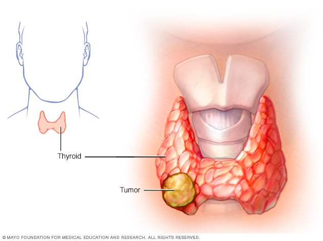 papillary thyroid cancer left untreated hpv face warts