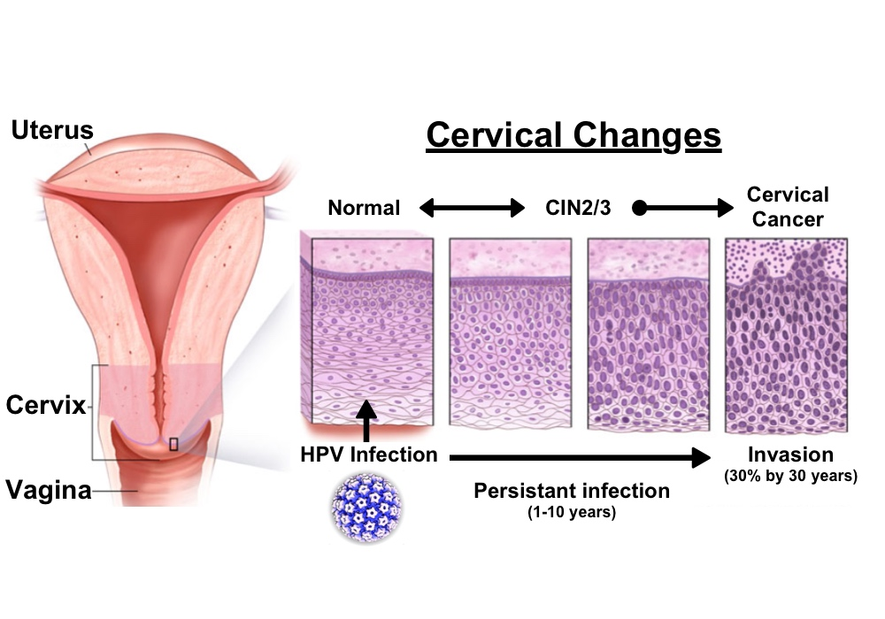 hpv cancer uterus papillary breast lesion pictures