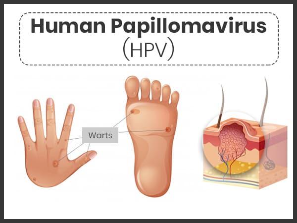 hpv strains head and neck cancer