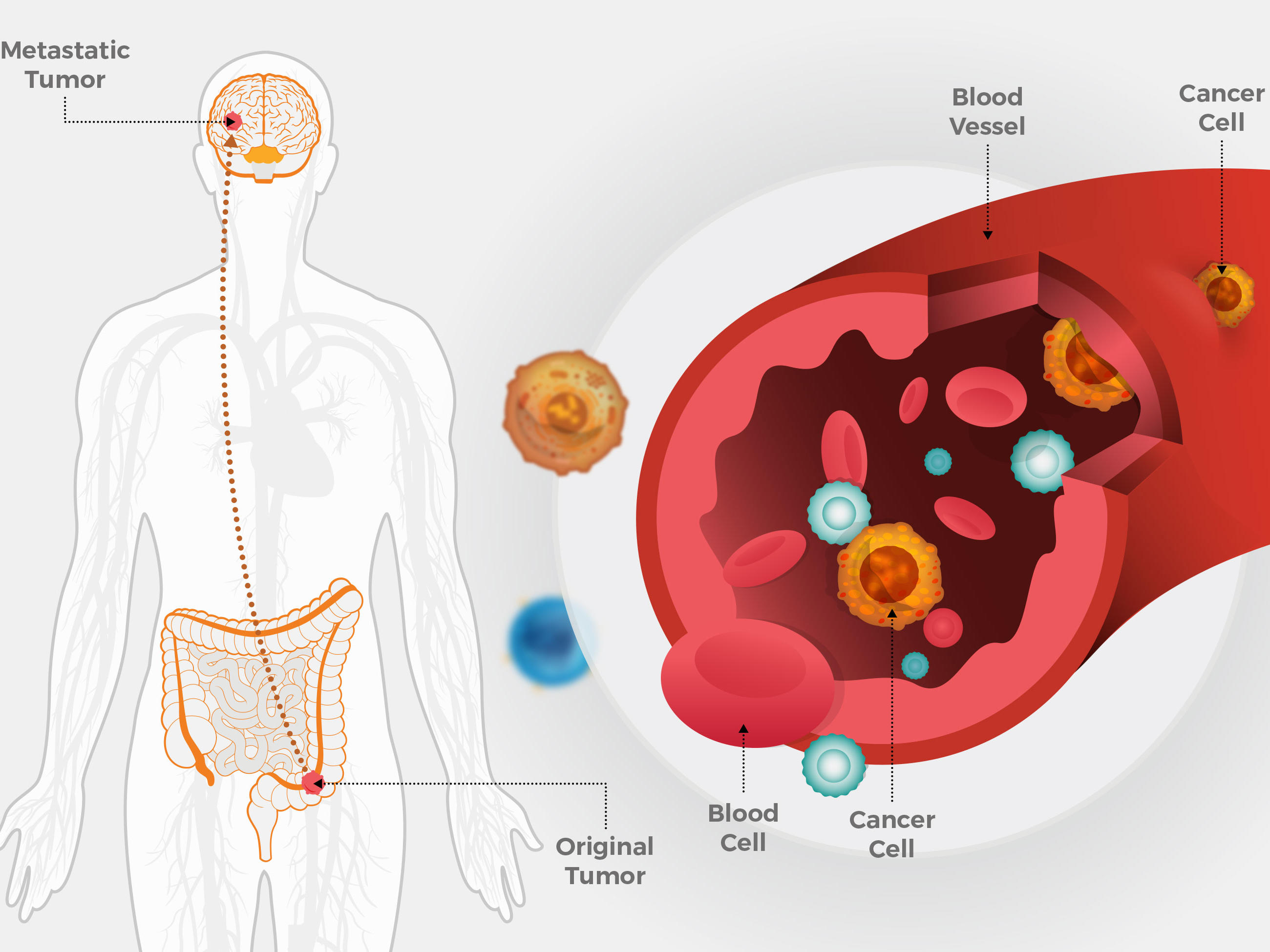Metastatic Cancer Cells Uterine Cancer Test