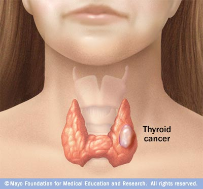 papillary thyroid cancer left untreated hpv cancer worldwide